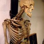 Skelettet- så viktigt är det och så stärker du ditt skelett