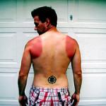 Solbränd – tips på att undvika och behandla solbränna