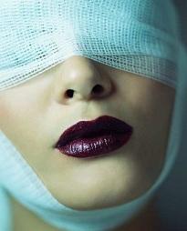 Plastikkirurgi kan förvärra mental ohälsa