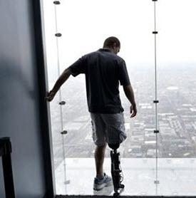 Man med ett bioniskt ben