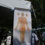 Hjälper akupunktur mot smärta? Ny forskning säger att den gör det